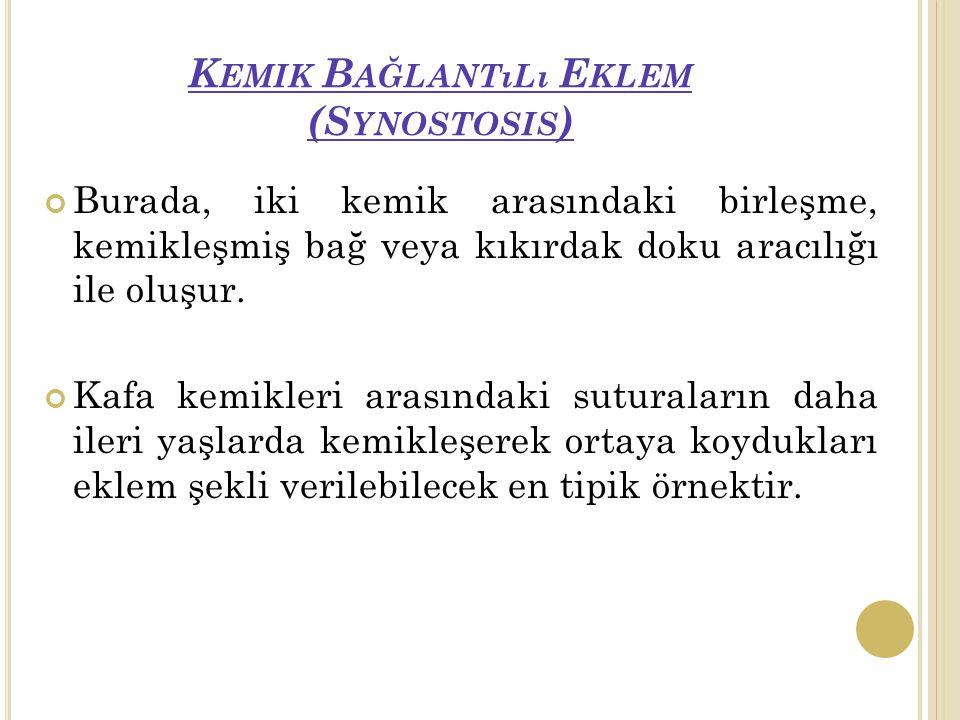 Kemik Bağlantılı Eklem (Synostosis)