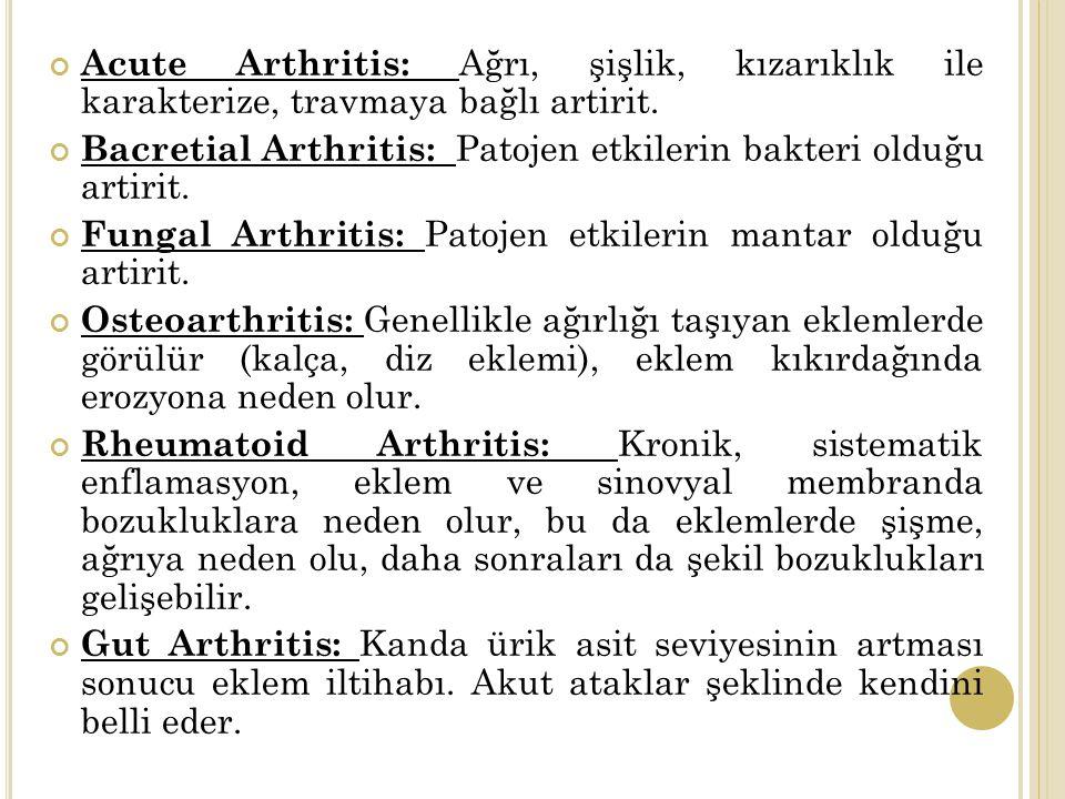 Acute Arthritis: Ağrı, şişlik, kızarıklık ile karakterize, travmaya bağlı artirit.