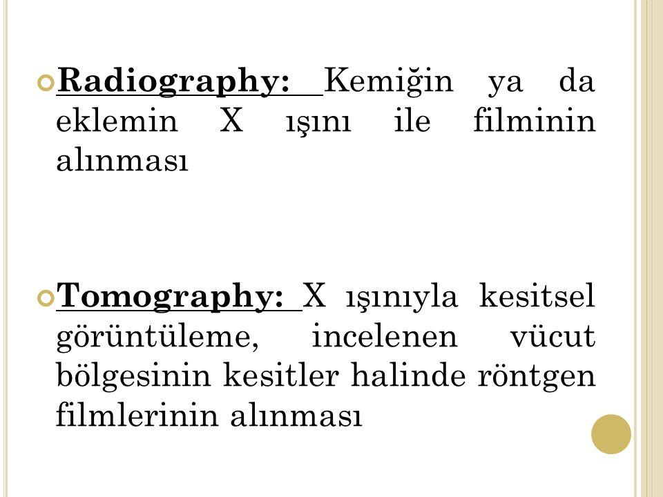 Radiography: Kemiğin ya da eklemin X ışını ile filminin alınması