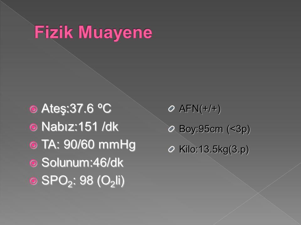 Fizik Muayene Ateş:37.6 ºC Nabız:151 /dk TA: 90/60 mmHg Solunum:46/dk