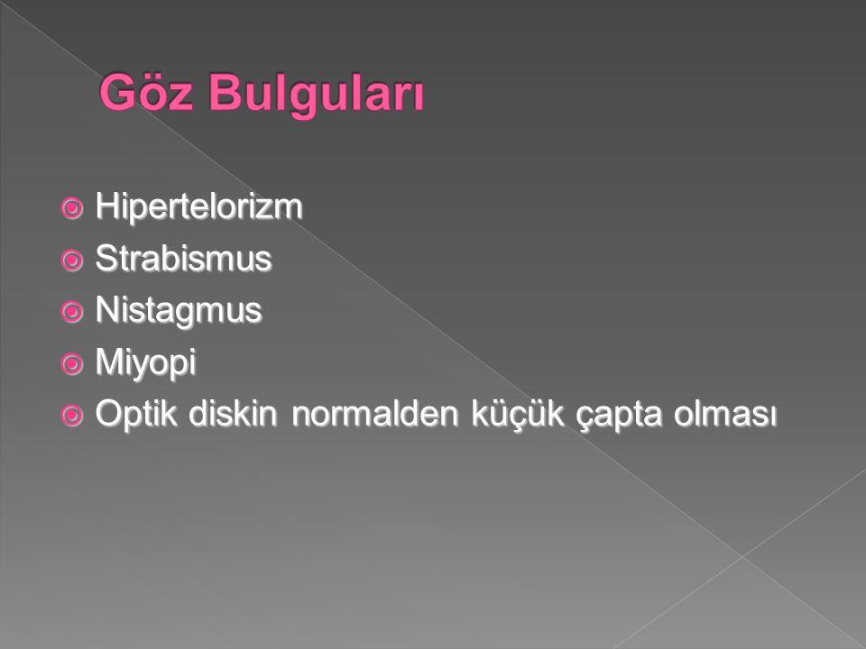 Göz Bulguları Hipertelorizm Strabismus Nistagmus Miyopi
