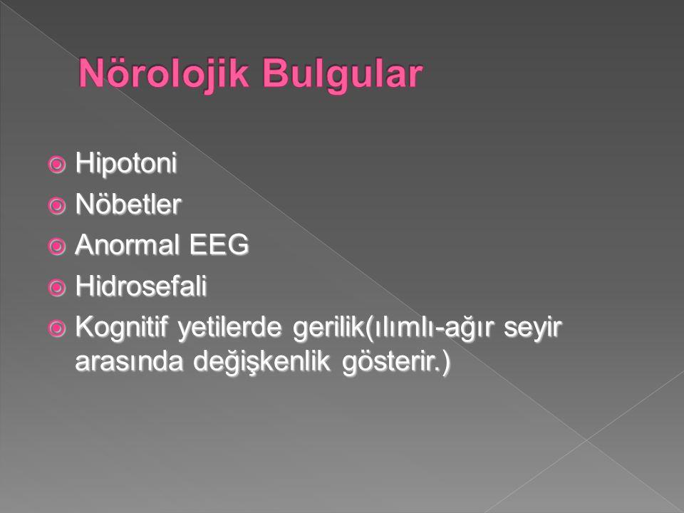 Nörolojik Bulgular Hipotoni Nöbetler Anormal EEG Hidrosefali