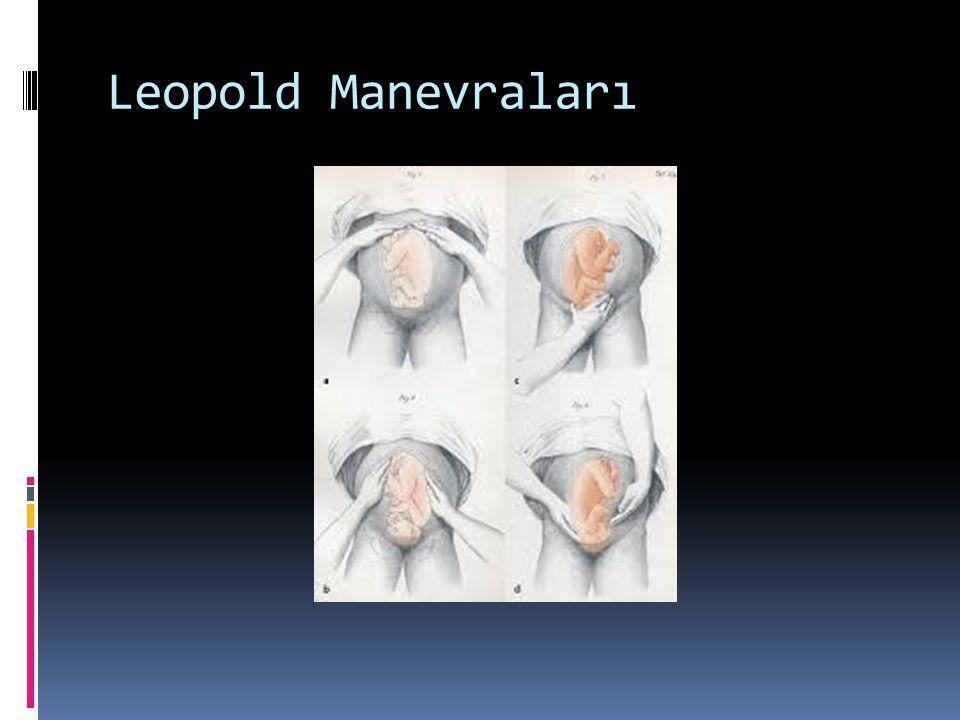 Leopold Manevraları