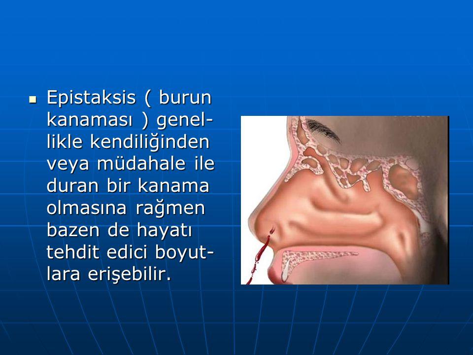 Epistaksis ( burun kanaması ) genel-likle kendiliğinden veya müdahale ile duran bir kanama olmasına rağmen bazen de hayatı tehdit edici boyut-lara erişebilir.
