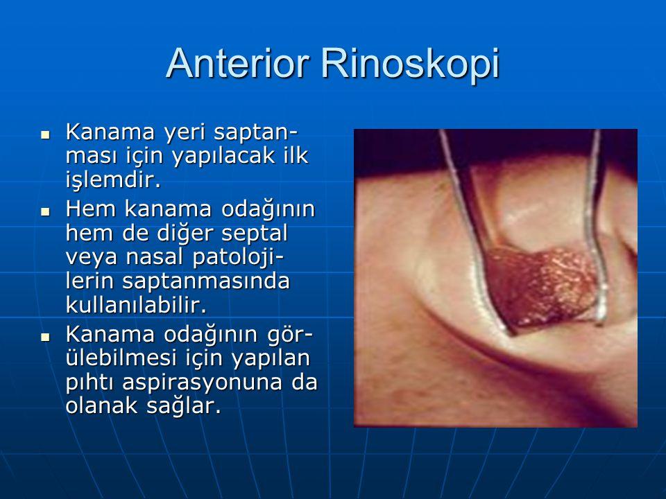Anterior Rinoskopi Kanama yeri saptan-ması için yapılacak ilk işlemdir.