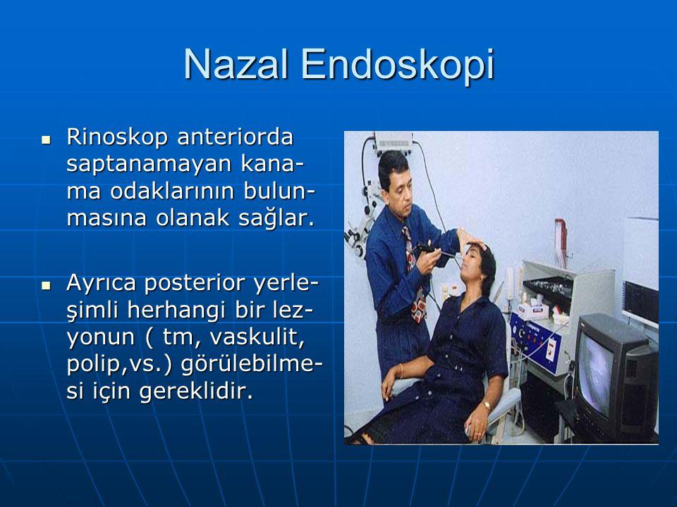 Nazal Endoskopi Rinoskop anteriorda saptanamayan kana-ma odaklarının bulun-masına olanak sağlar.