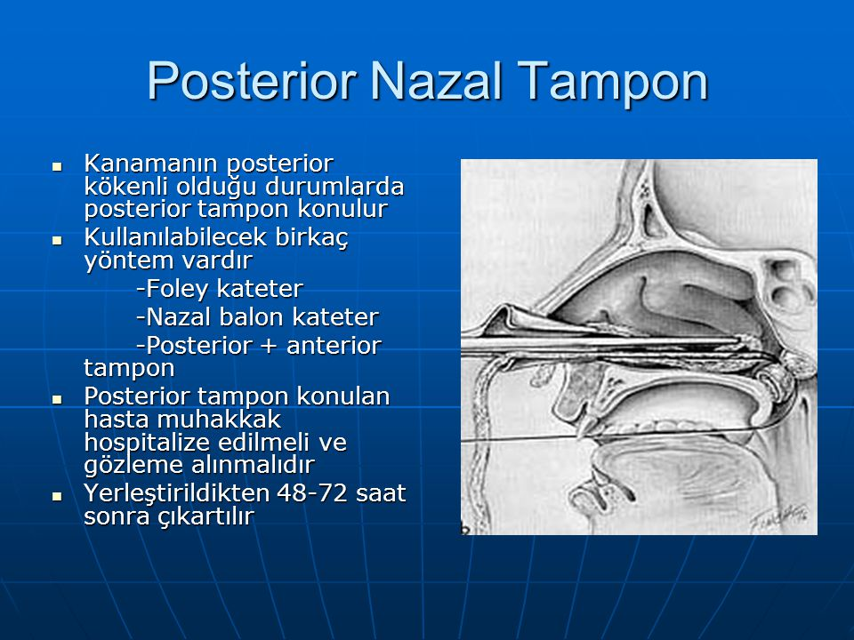Posterior Nazal Tampon