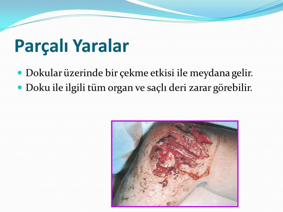 Parçalı Yaralar Dokular üzerinde bir çekme etkisi ile meydana gelir.