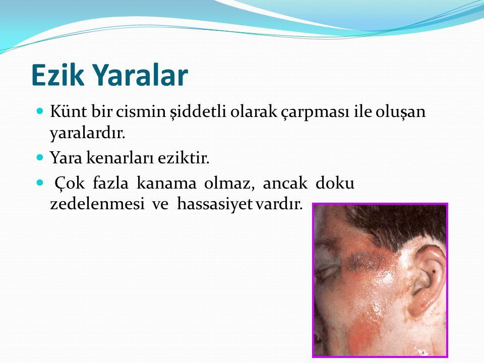 Ezik Yaralar Künt bir cismin şiddetli olarak çarpması ile oluşan yaralardır. Yara kenarları eziktir.