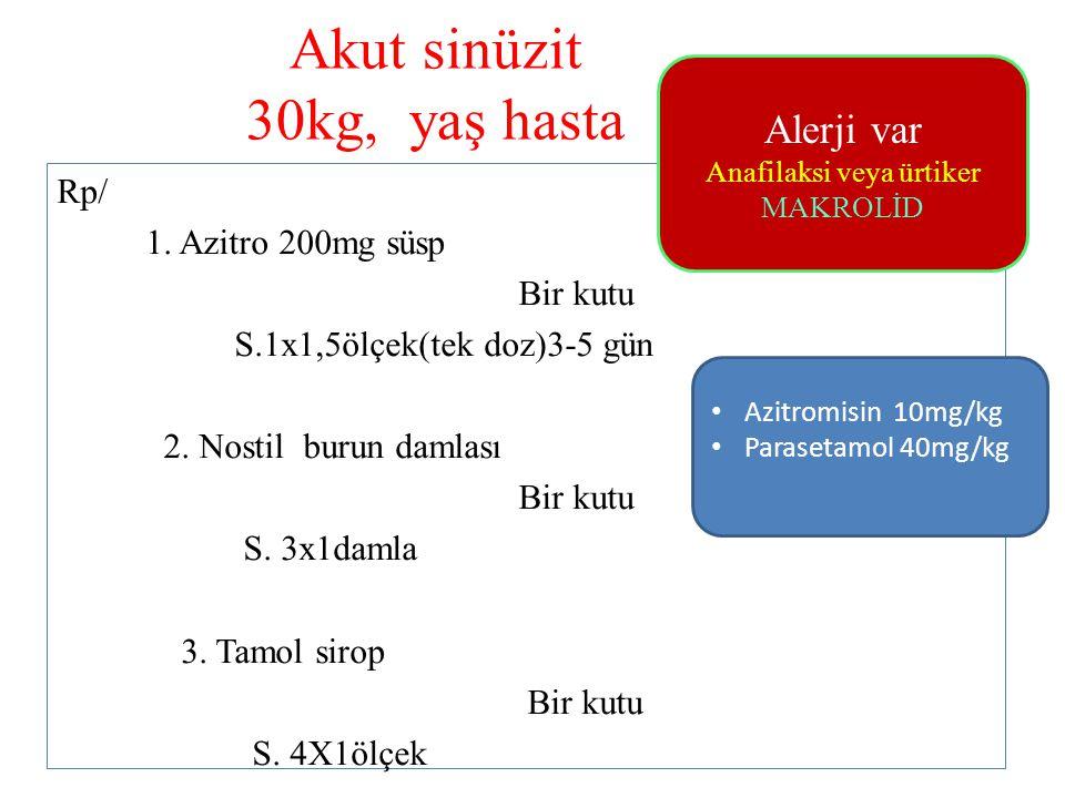 Akut sinüzit 30kg, yaş hasta