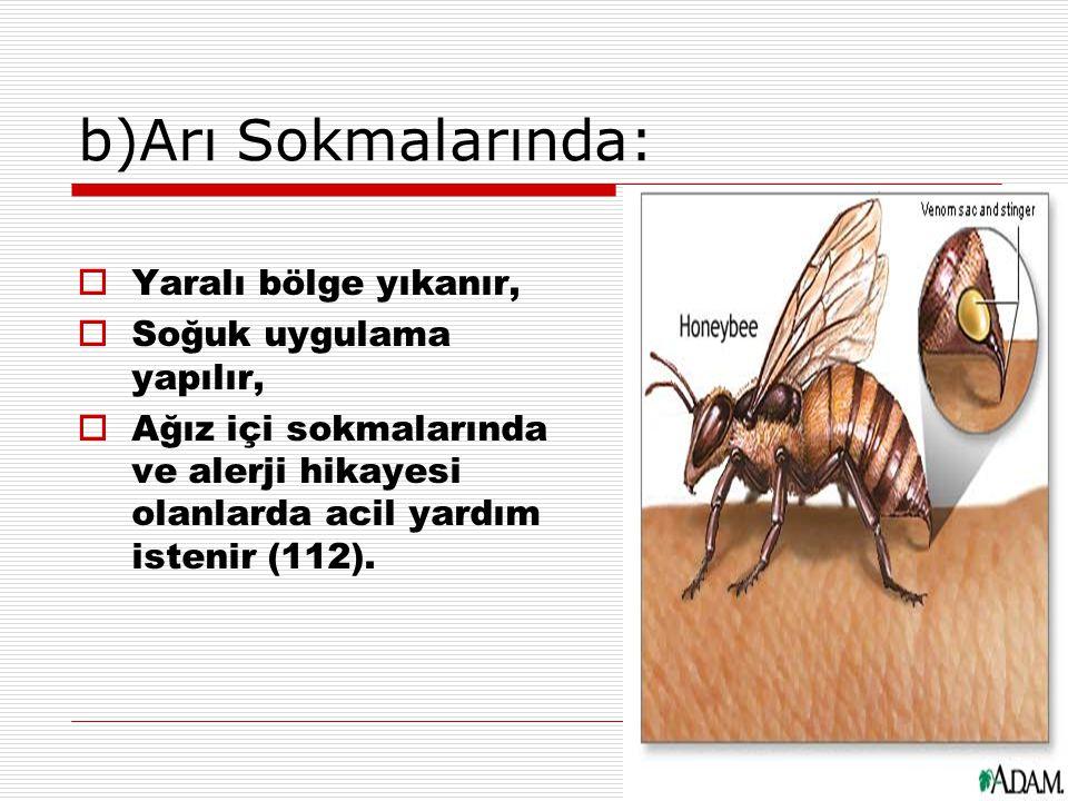 b)Arı Sokmalarında: Yaralı bölge yıkanır, Soğuk uygulama yapılır,