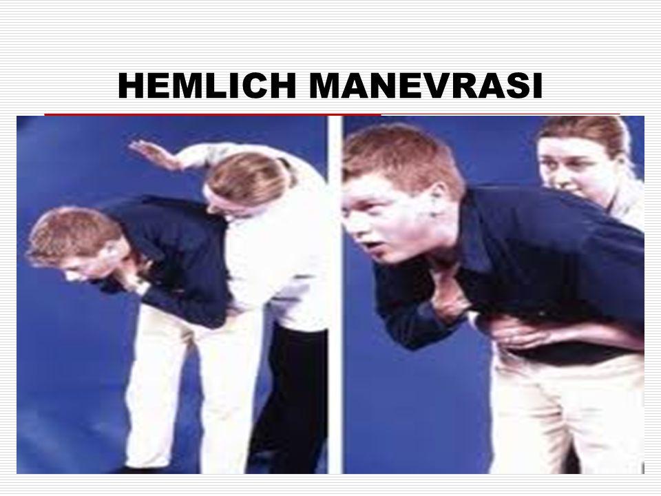 HEMLICH MANEVRASI