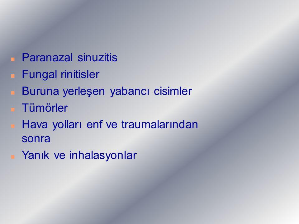 Paranazal sinuzitis Fungal rinitisler. Buruna yerleşen yabancı cisimler. Tümörler. Hava yolları enf ve traumalarından sonra.