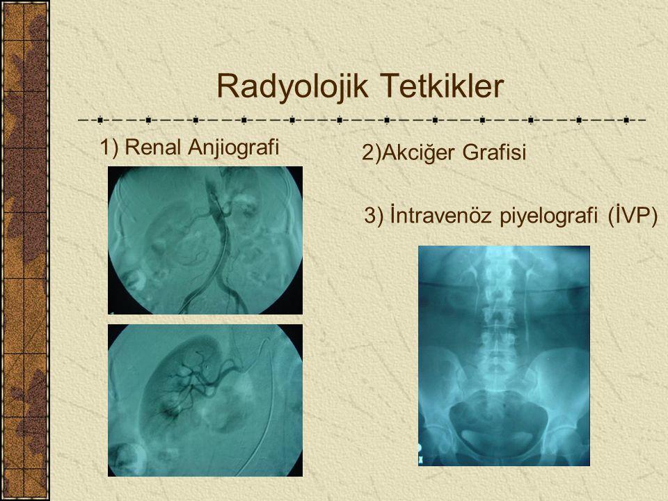 Radyolojik Tetkikler 1) Renal Anjiografi 2)Akciğer Grafisi