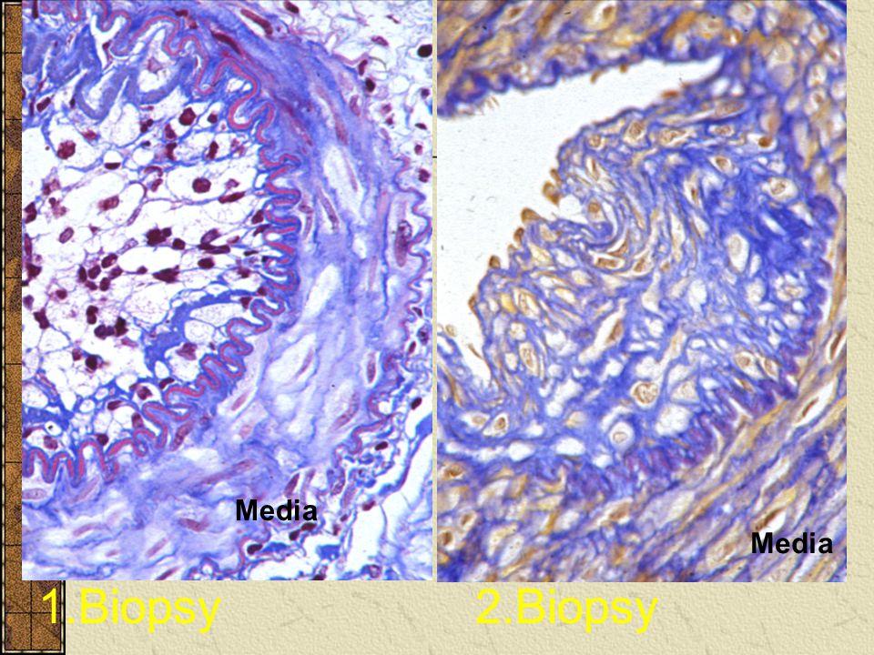 Media Media 1.Biopsy 2.Biopsy