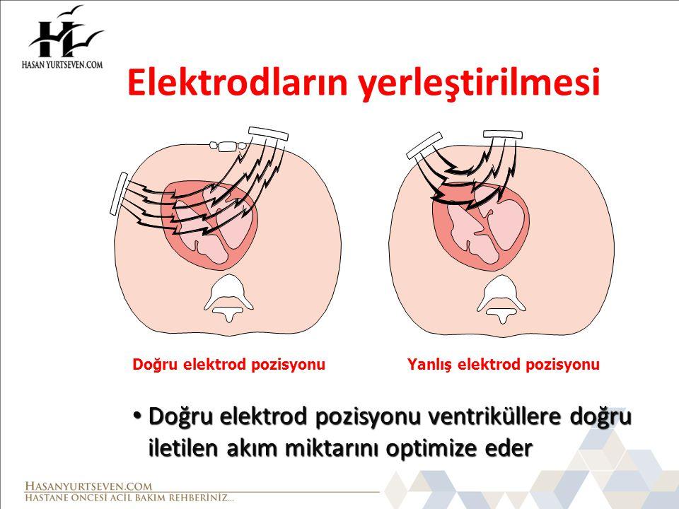 Elektrodların yerleştirilmesi
