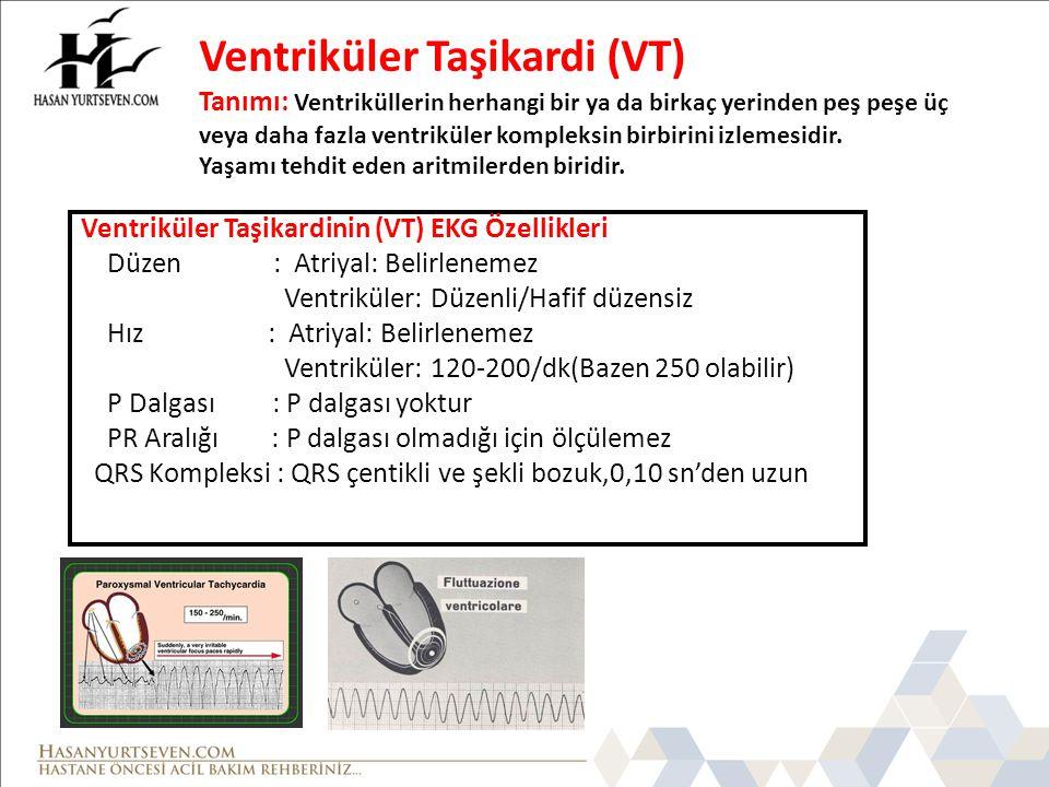 Ventriküler Taşikardi (VT) Tanımı: Ventriküllerin herhangi bir ya da birkaç yerinden peş peşe üç veya daha fazla ventriküler kompleksin birbirini izlemesidir. Yaşamı tehdit eden aritmilerden biridir.