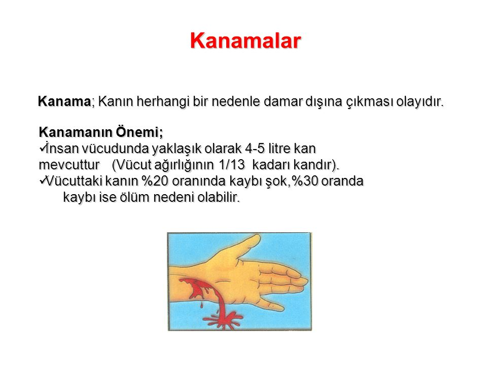 Kanamalar Kanama; Kanın herhangi bir nedenle damar dışına çıkması olayıdır. Kanamanın Önemi;
