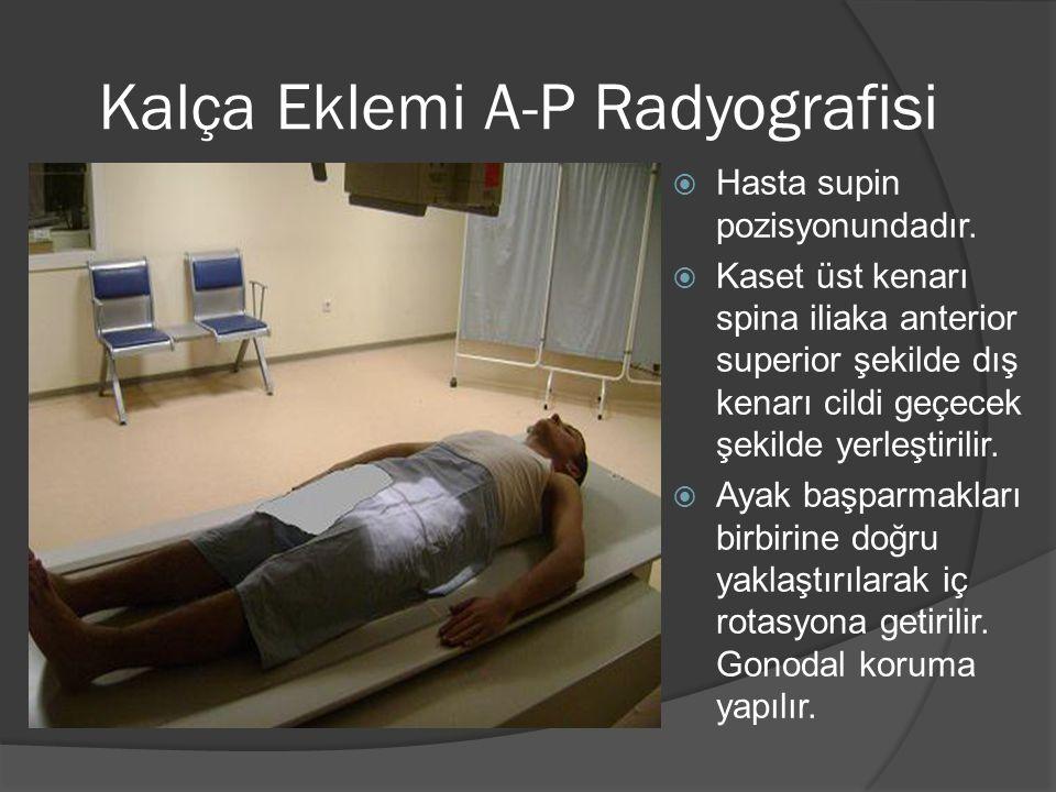 Kalça Eklemi A-P Radyografisi