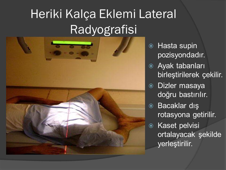 Heriki Kalça Eklemi Lateral Radyografisi