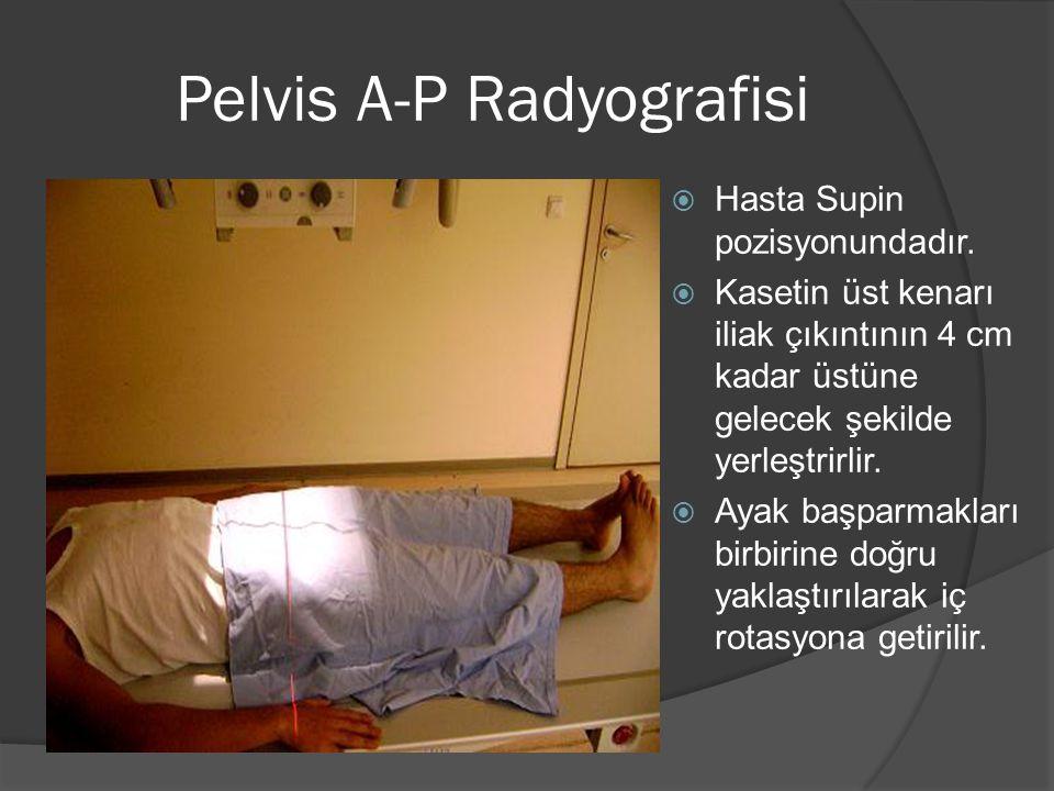 Pelvis A-P Radyografisi