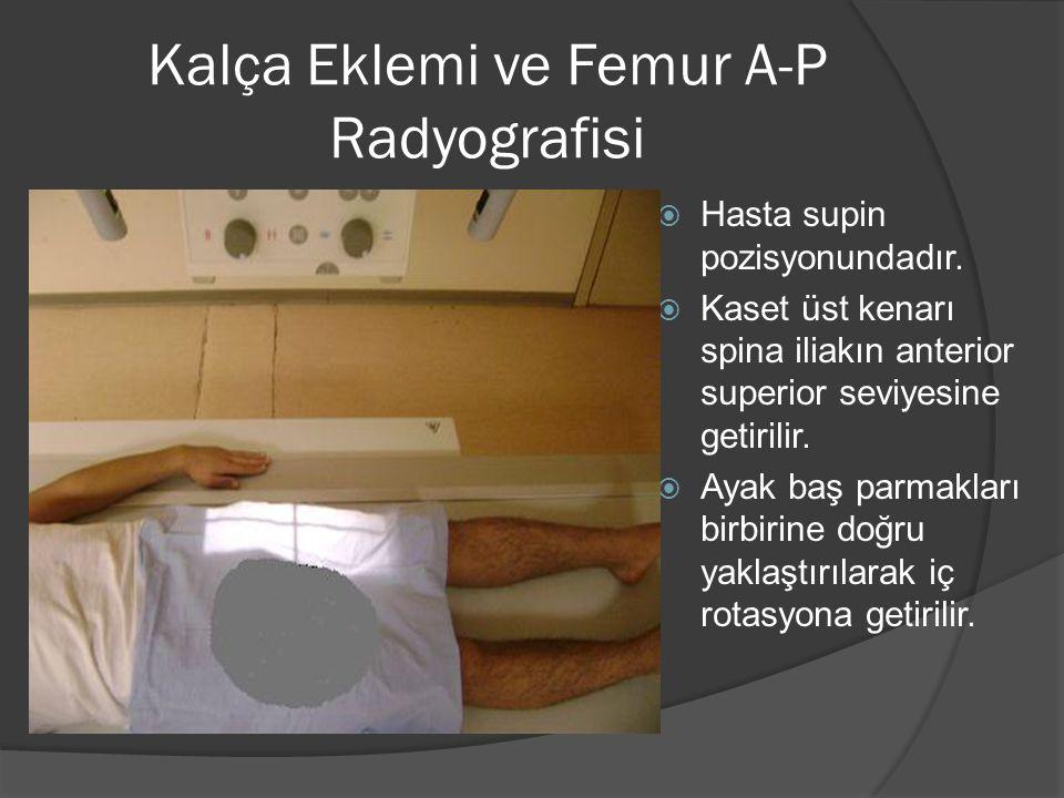 Kalça Eklemi ve Femur A-P Radyografisi