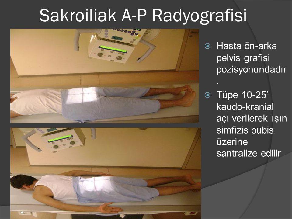 Sakroiliak A-P Radyografisi