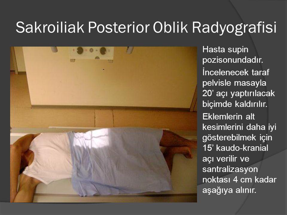 Sakroiliak Posterior Oblik Radyografisi