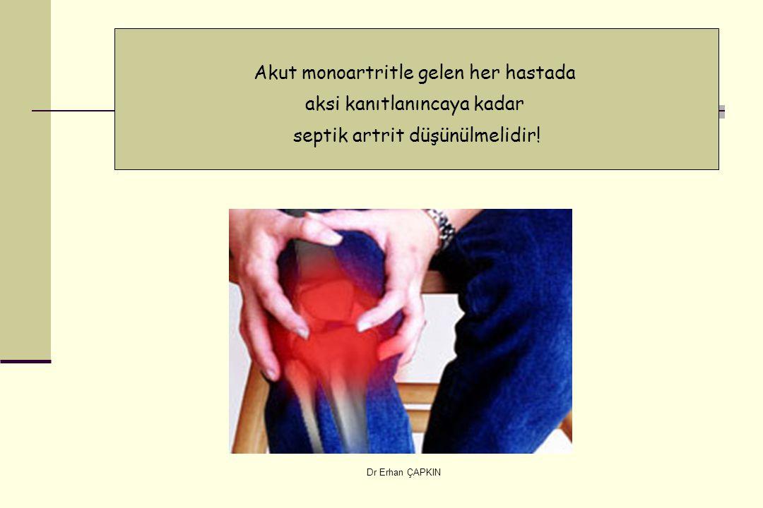 Akut monoartritle gelen her hastada aksi kanıtlanıncaya kadar