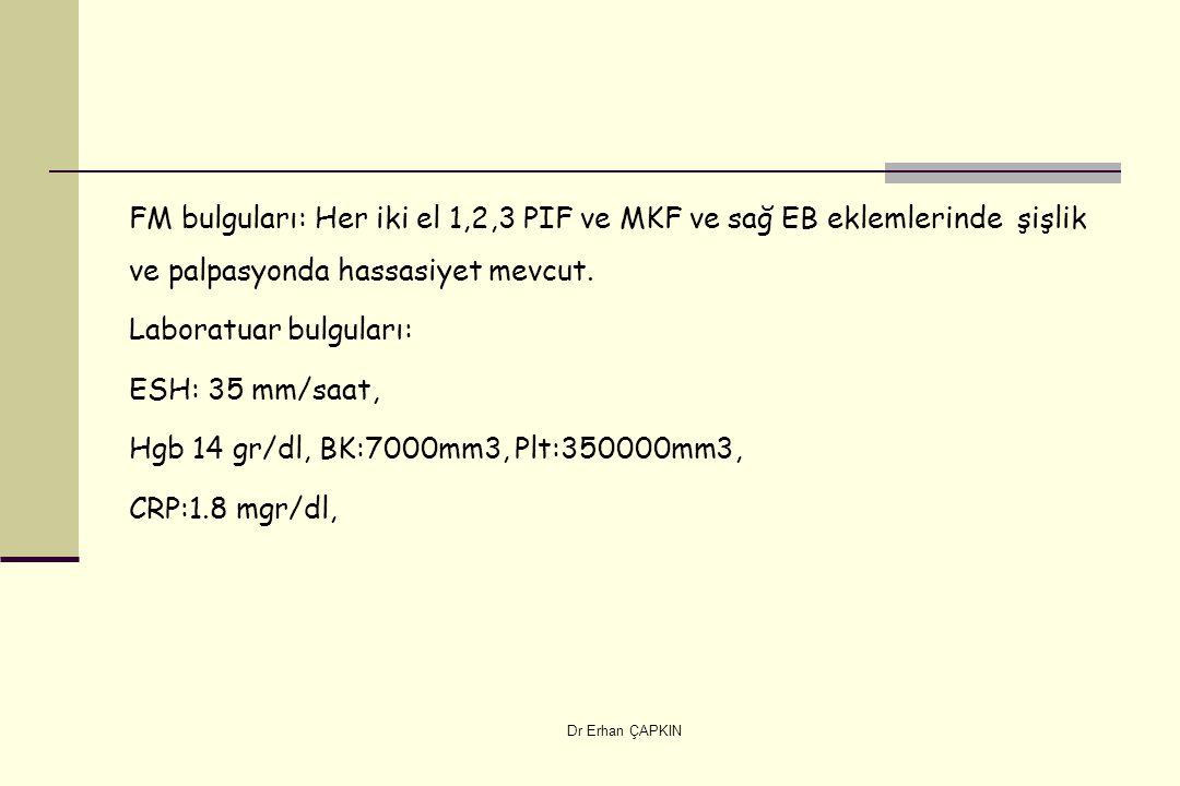 FM bulguları: Her iki el 1,2,3 PIF ve MKF ve sağ EB eklemlerinde şişlik ve palpasyonda hassasiyet mevcut. Laboratuar bulguları: ESH: 35 mm/saat, Hgb 14 gr/dl, BK:7000mm3, Plt:350000mm3, CRP:1.8 mgr/dl,