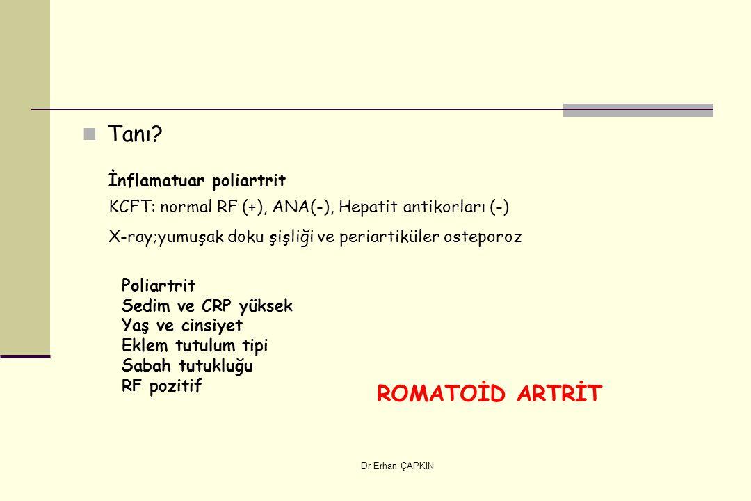 Tanı ROMATOİD ARTRİT İnflamatuar poliartrit