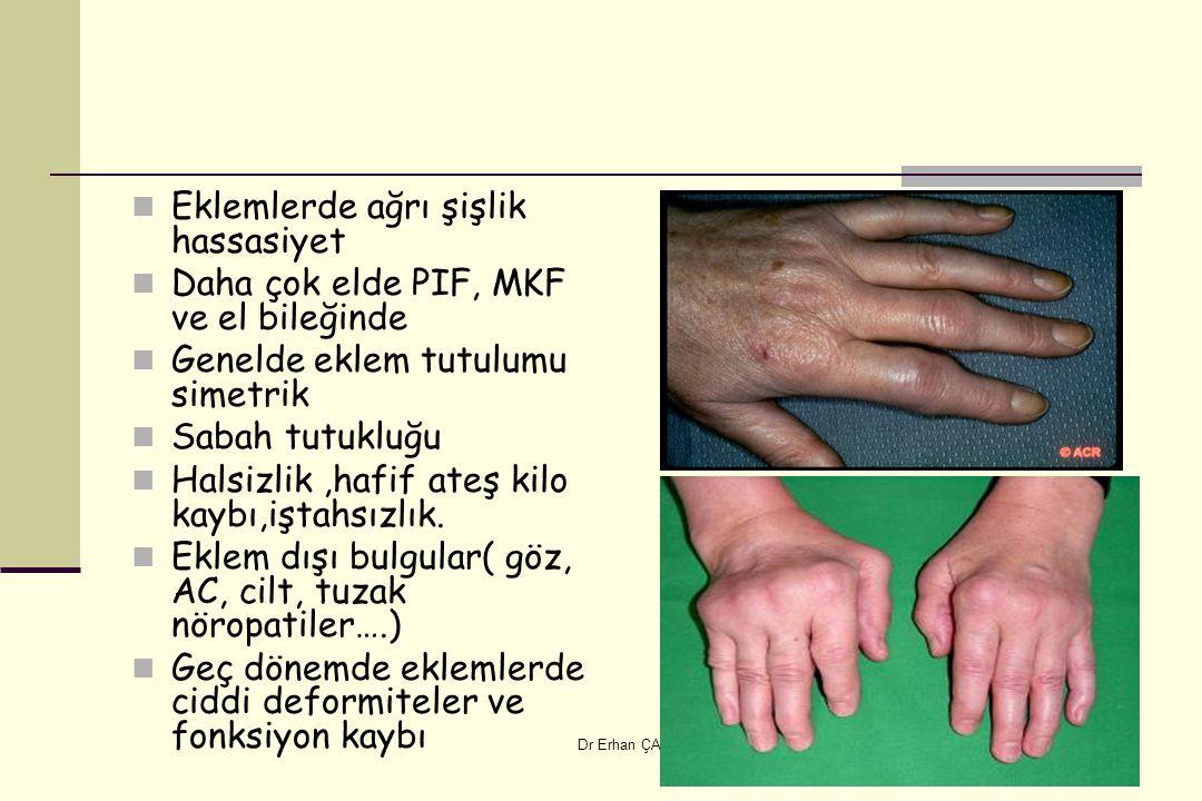 Eklemlerde ağrı şişlik hassasiyet