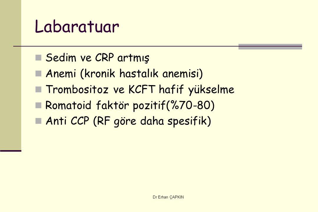 Labaratuar Sedim ve CRP artmış Anemi (kronik hastalık anemisi)