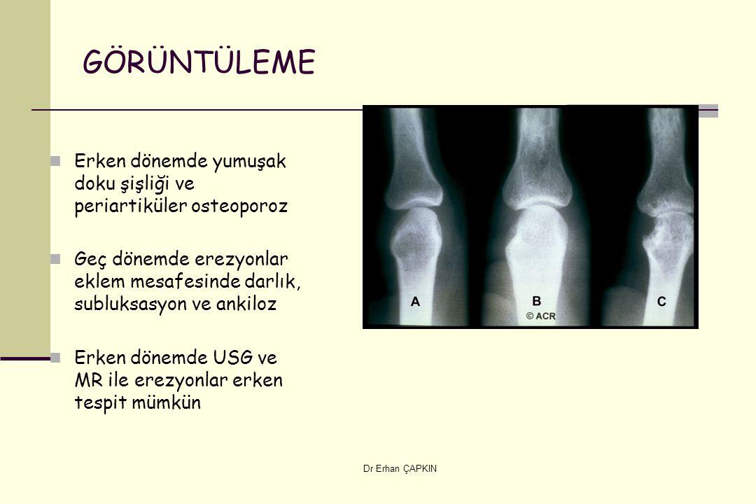 GÖRÜNTÜLEME Erken dönemde yumuşak doku şişliği ve periartiküler osteoporoz. Geç dönemde erezyonlar eklem mesafesinde darlık, subluksasyon ve ankiloz.