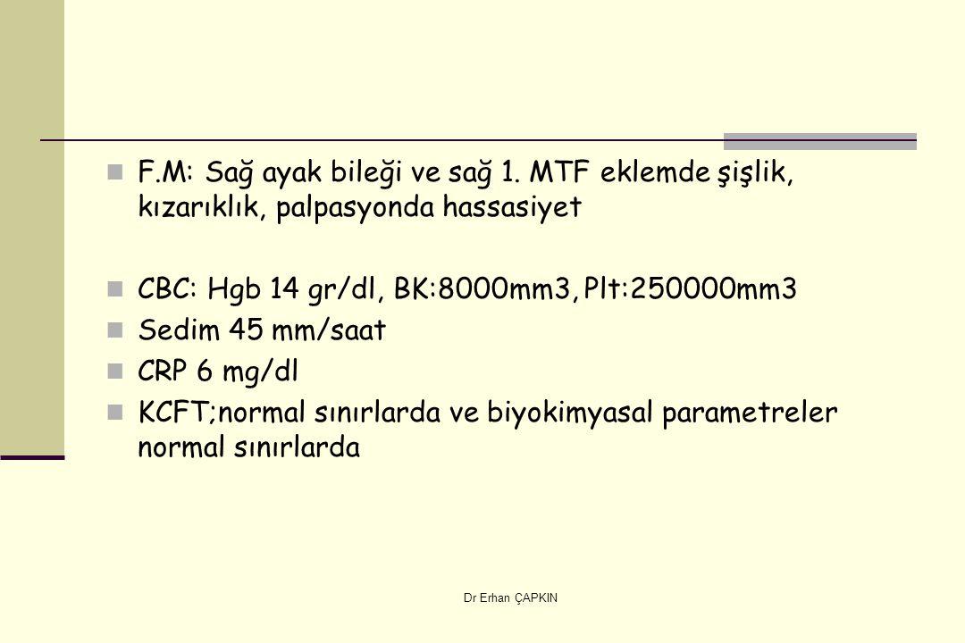 CBC: Hgb 14 gr/dl, BK:8000mm3, Plt:250000mm3 Sedim 45 mm/saat