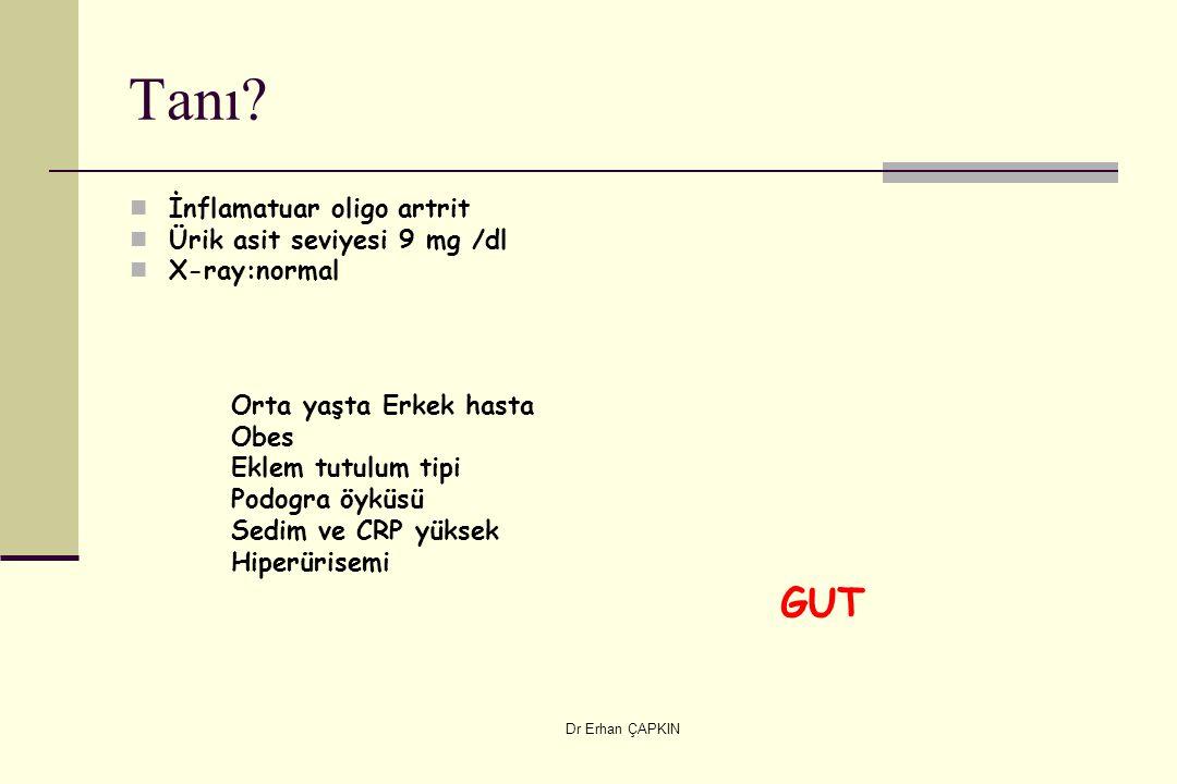 Tanı GUT İnflamatuar oligo artrit Ürik asit seviyesi 9 mg /dl