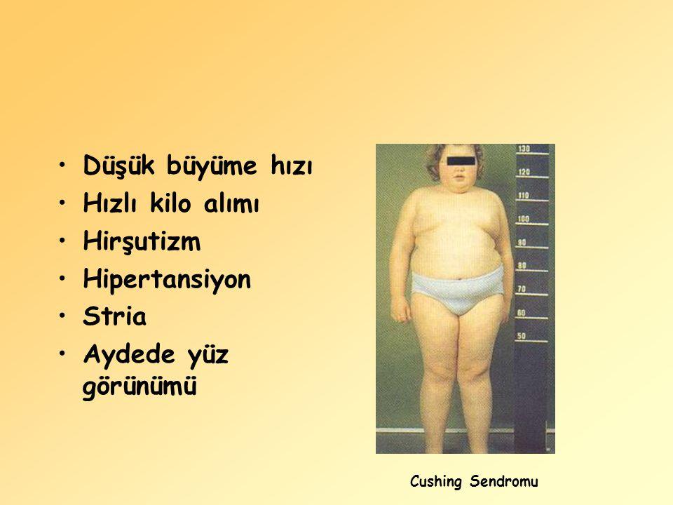 Düşük büyüme hızı Hızlı kilo alımı Hirşutizm Hipertansiyon Stria