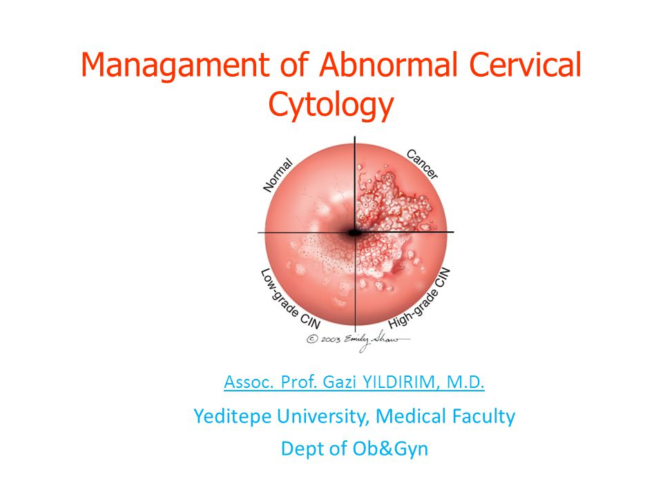 Managament of Abnormal Cervical Cytology