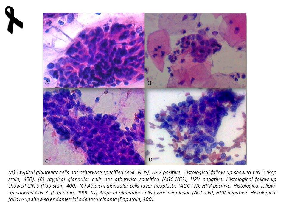 (A) Atypical glandular cells not otherwise specified (AGC-NOS), HPV positive.