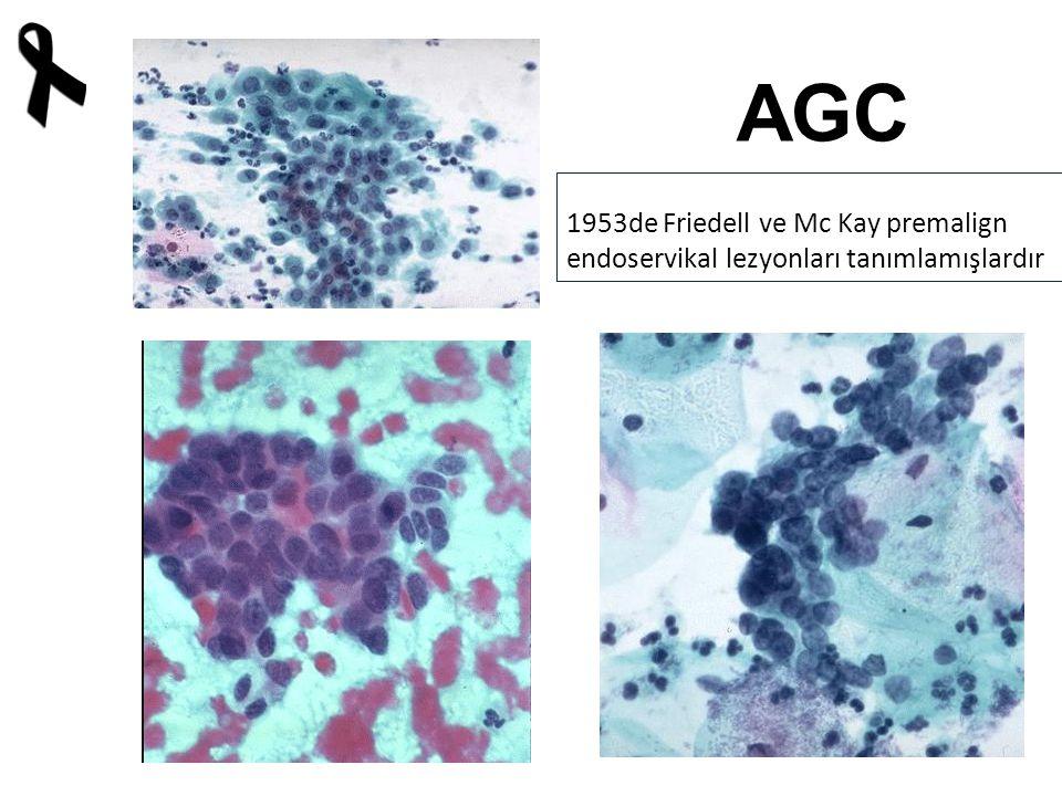 AGC 1953de Friedell ve Mc Kay premalign endoservikal lezyonları tanımlamışlardır