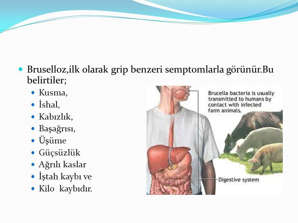 Bruselloz,ilk olarak grip benzeri semptomlarla görünür.Bu belirtiler;