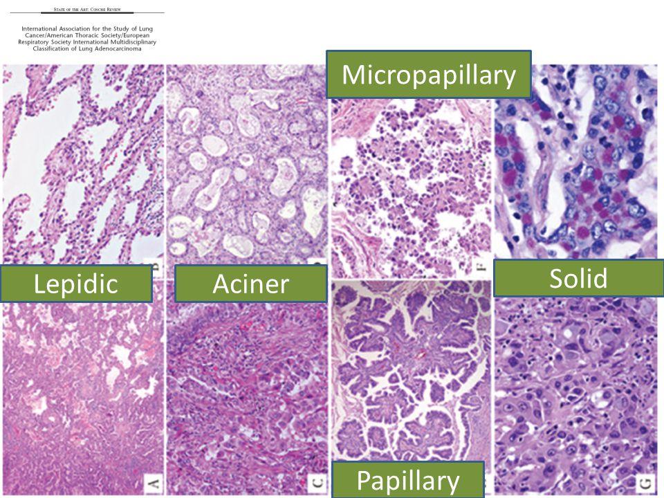 Micropapillary Solid Lepidic Aciner Papillary