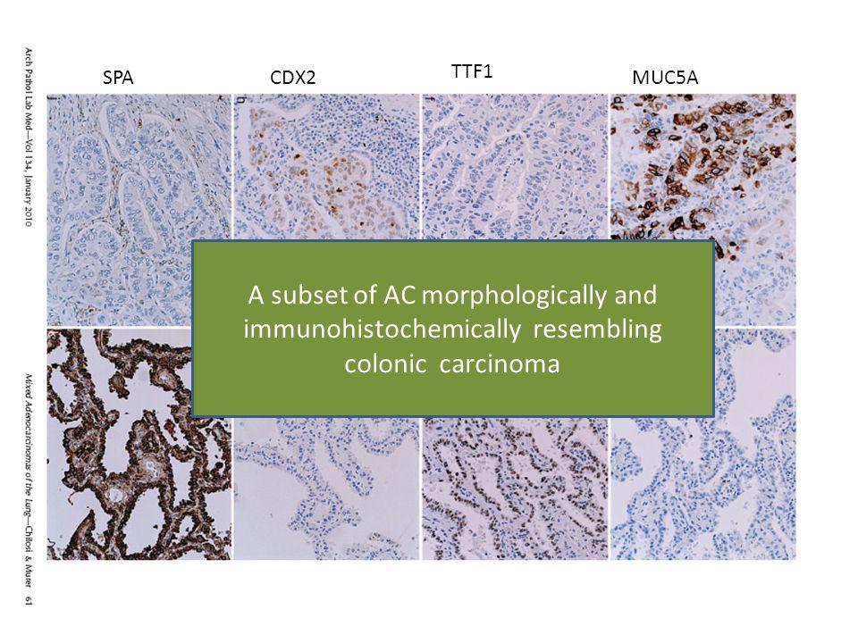 TTF1 SPA. CDX2. MUC5A.