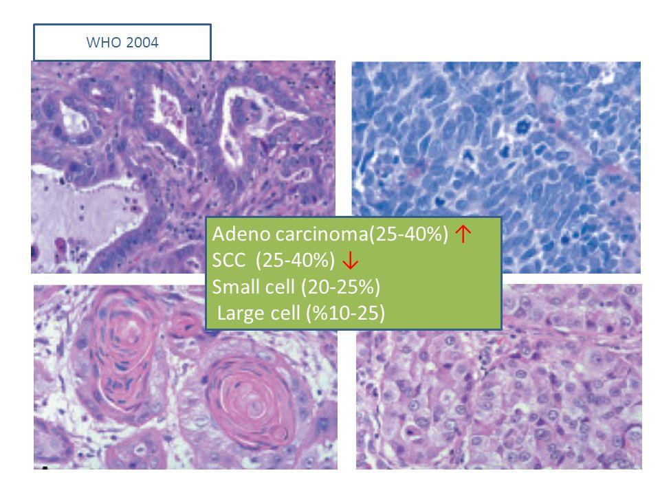Adeno carcinoma(25-40%) ↑ SCC (25-40%) ↓ Small cell (20-25%)