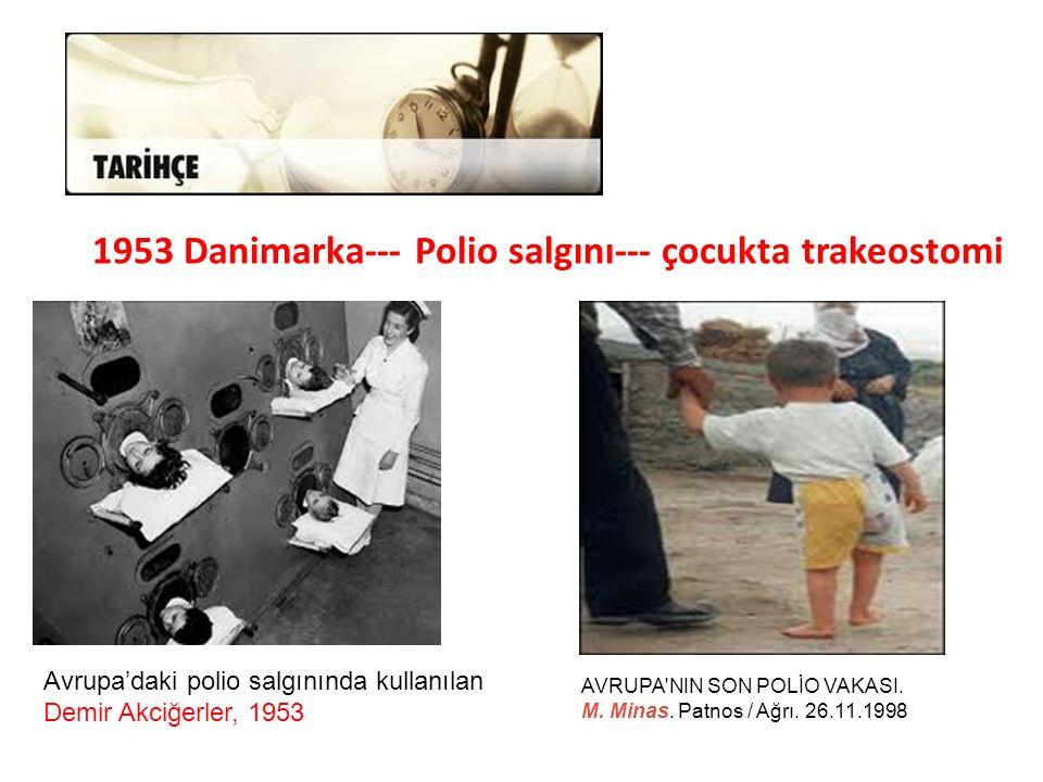 1953 Danimarka--- Polio salgını--- çocukta trakeostomi