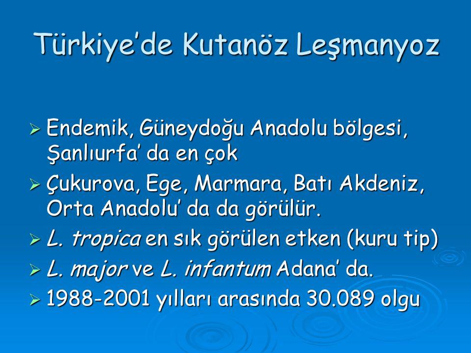 Türkiye'de Kutanöz Leşmanyoz