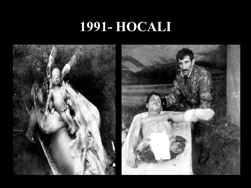 1991- HOCALI