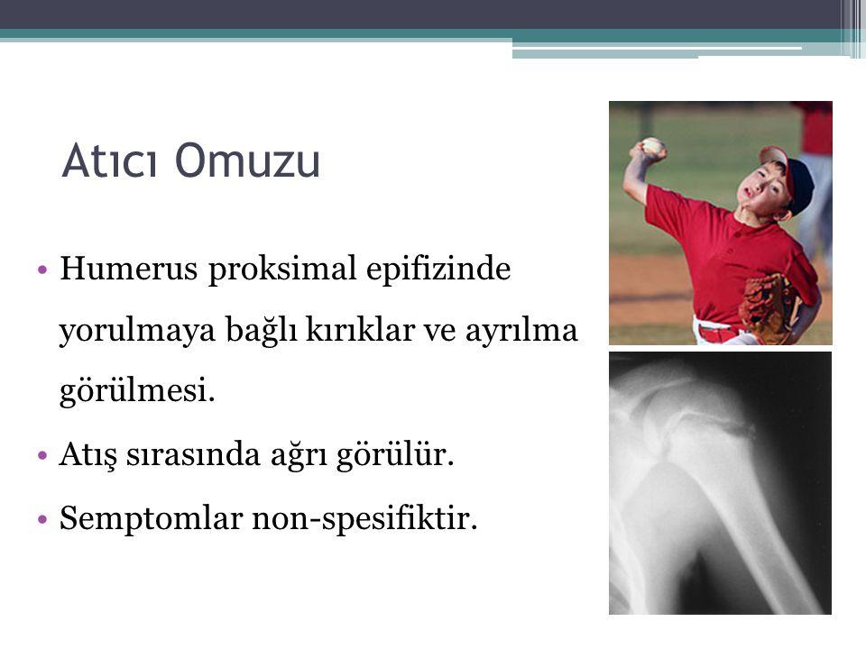 Atıcı Omuzu Humerus proksimal epifizinde yorulmaya bağlı kırıklar ve ayrılma görülmesi. Atış sırasında ağrı görülür.