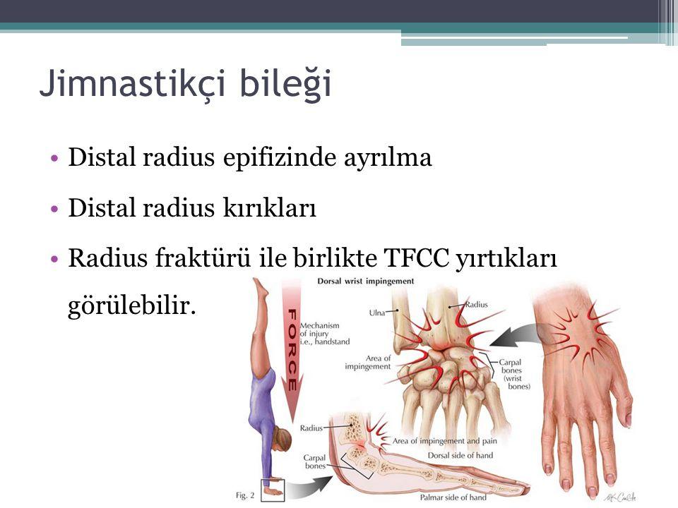 Jimnastikçi bileği Distal radius epifizinde ayrılma