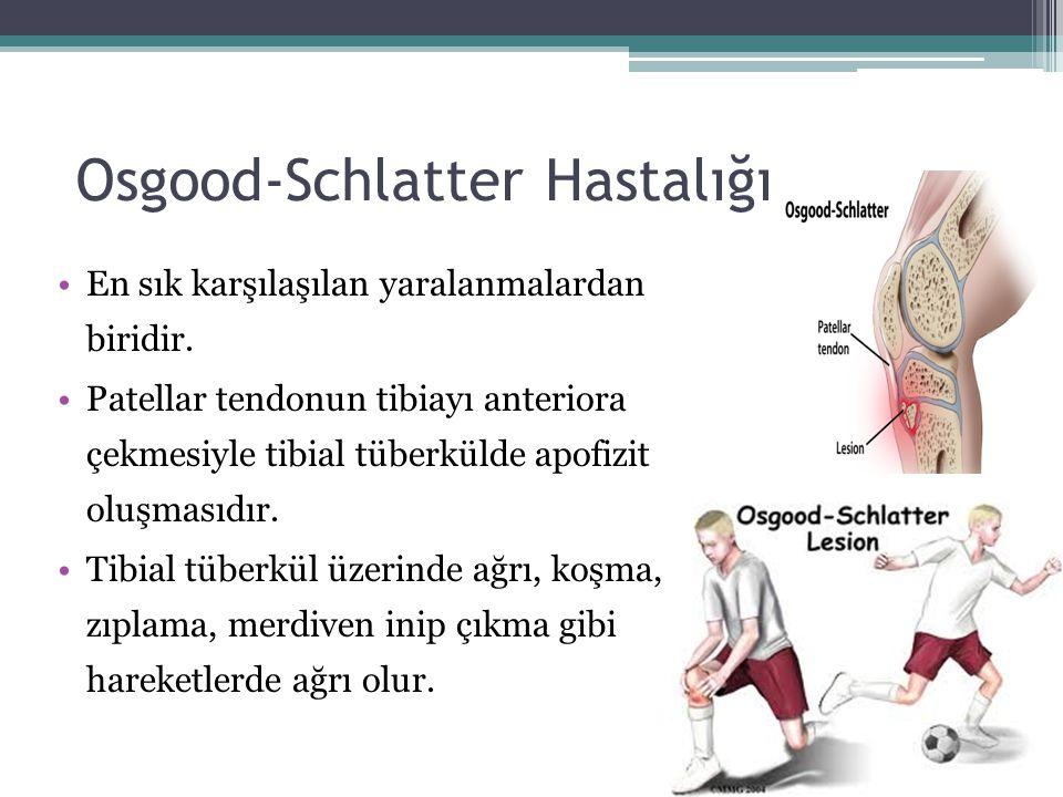 Osgood-Schlatter Hastalığı